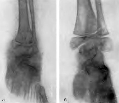 Туберкулез голеностопного сустава. Больная П., 3 лет