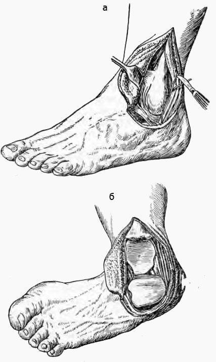 Методика резекции голеностопного сустава по Кохеру (из книги Винькенбауера)