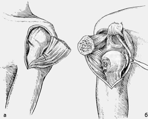 Резекция плечевого сустава по Тилингу