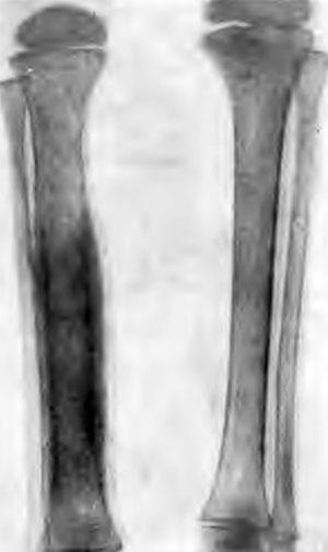 Туберкулез диафиза длинных трубчатых костей