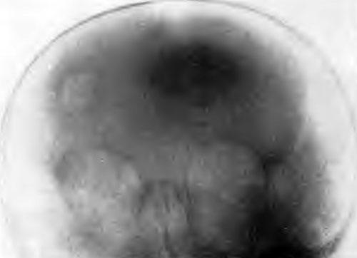 Туберкулез костей черепа