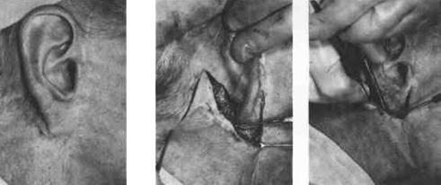 Пересадка кожи: особенности операции