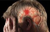 Инсульт – его основные симптомы и причины возникновения