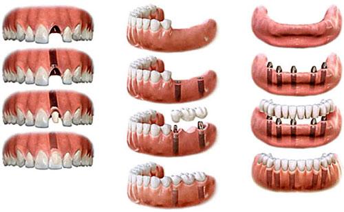 Методы и виды имплантации зубов