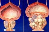 Причины простатита у мужчин: какие способы лечения существуют