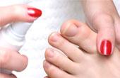 Грибок ногтей: симптомы, причины, лечение