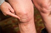 Крем АРТРЕЙД – мощнейшее средство при появлении острой боли в суставах