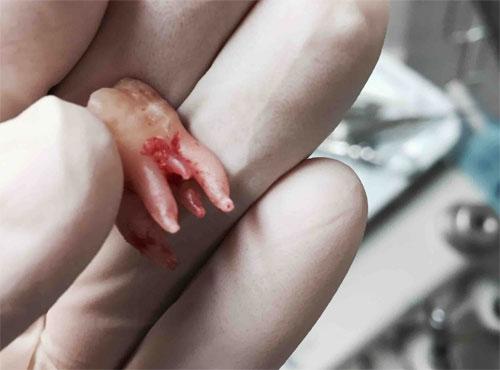 Болезни, атакующие корни зубов