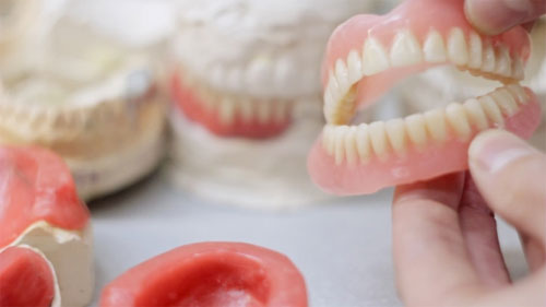 Зубные импланты, вставная челюсть: как ухаживать?