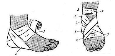 Наложение повязки на голеностопный сустав косыночная повязка картинки купить отводящая шина плечевого сустава