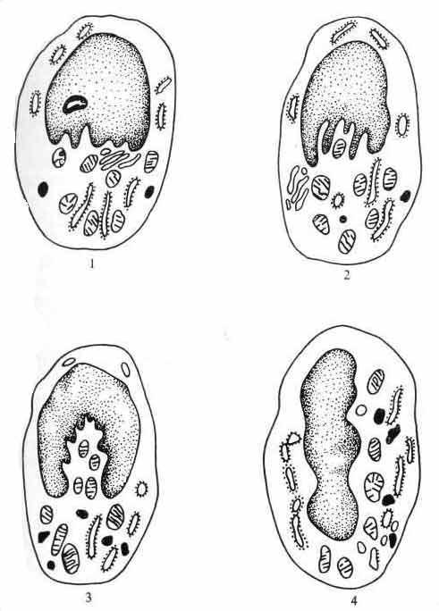 Схема различных типов инвагинаций ядра в эпителиоидных клетках при саркоидозе