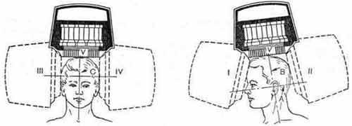 Схема стандартных проекций при гамма-топографии головного мозга и отношение коллиматора гамма-камеры к ориентирующим плоскостям