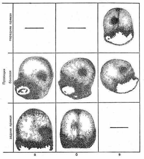 Гамма-топограммы головного мозга при поражении его опухолью