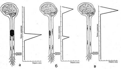 Принцип метода радионуклидной миелографии с 133Хе
