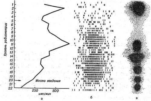 Гамма-топограммы при распространенном спинальном арахноидите