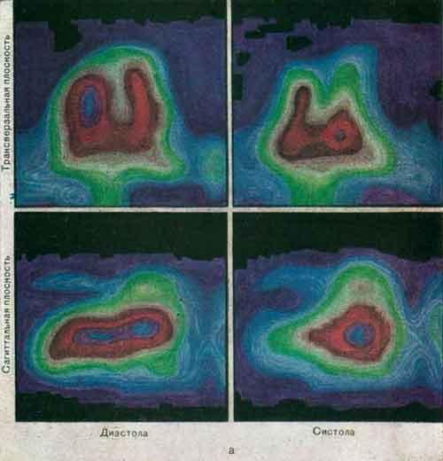 Динамическая гамма-топография полостей сердца после внутривенного введения 99mТс-пертехнетата (а)