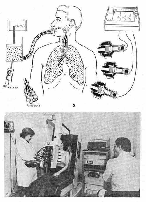 Радионуклидное определение внешнего дыхания с воздушно-ксеноновой смесью