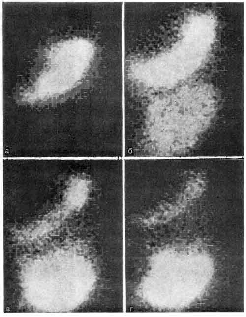 Гамма-топографическое исследование эвакуаторной функции желудка