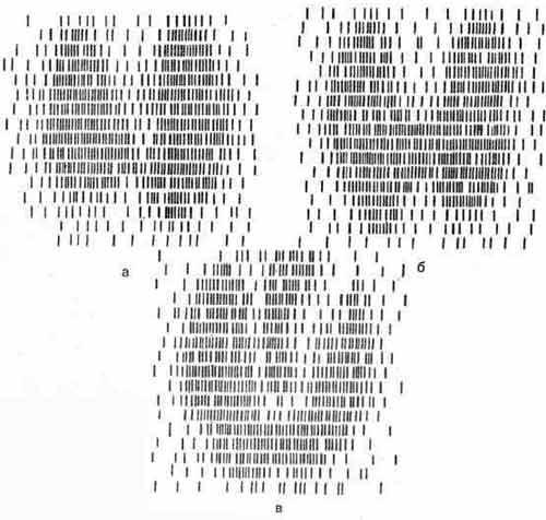 Гамма-топограммы нормальной щитовидной железы