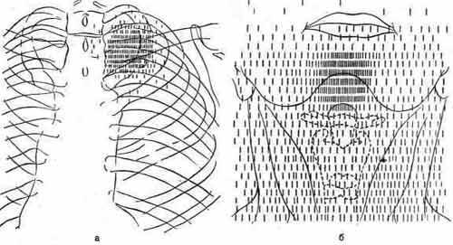 Аномальные положения щитовидной железы (схема гамма-топограмм)