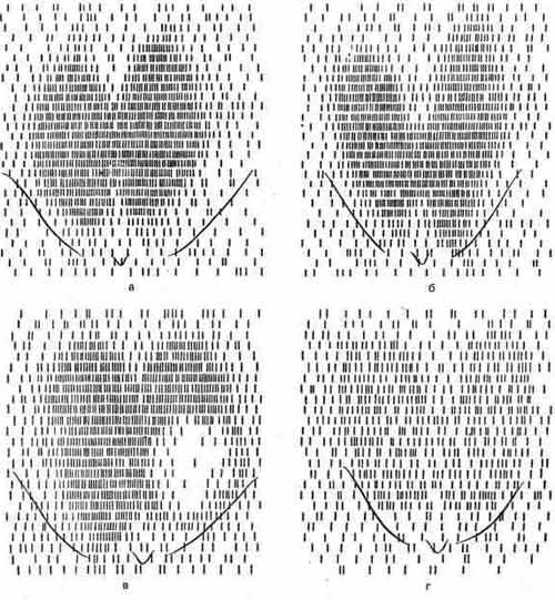 Гамма-топограммы щитовидной железы при различных заболеваниях