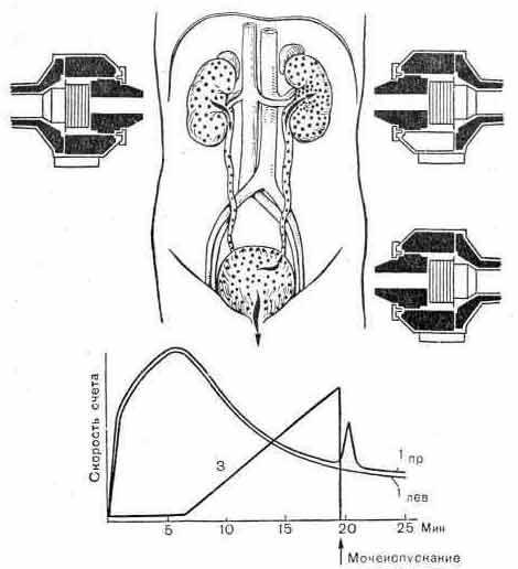 Гамма-хронография при пузырно-почечном рефлюксе