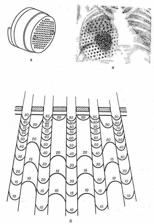 Применение свинцового решетчатого фильтра при лучевой терапии