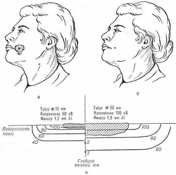 Короткодистанционная рентгенотерапия рака кожи. Базалиома левого угла рта