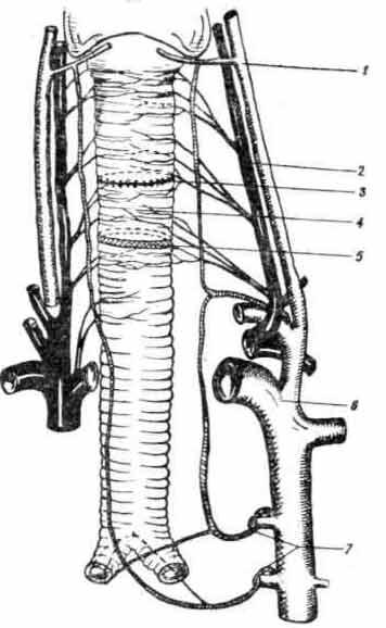 Экстраорганные артерии и вены трахеи собаки (схема)
