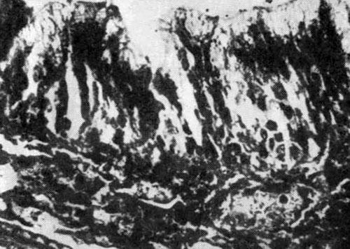 Сохранившийся эпителиальный покров и подслизистый слои носовой раковины крысы (воздействие пыли породы в течение 6 мес) при применении профилактических мероприятии