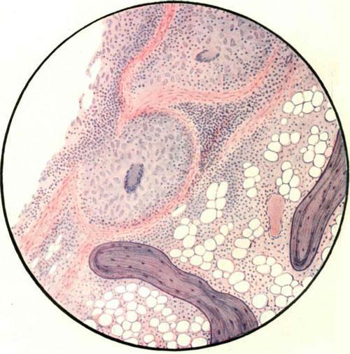 Туберкулезные бугорки в костном мозгу губчатого отдела кости