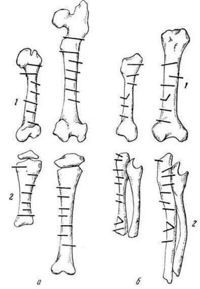 Продольный рост костей. Смещение металлических штифтов