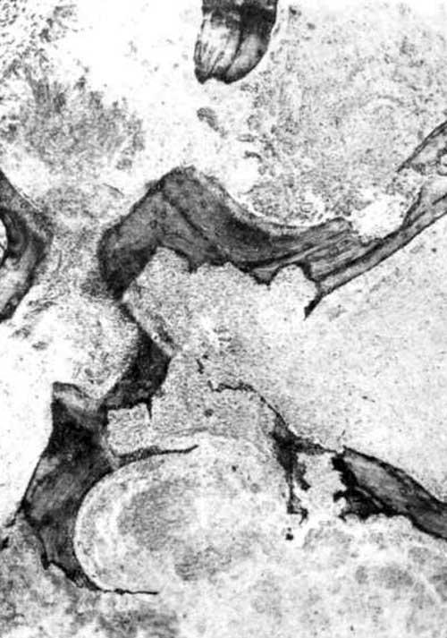 Некроз костных балок в центре творожистого очага костного мозга эпифиза бедра; поздний некроз с резорбцией