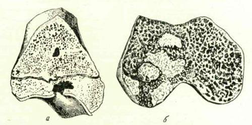 Костные туберкулезные очаги