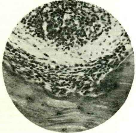Разъедание покровного хряща неспецифическими элементами разрастающейся грануляционной ткани