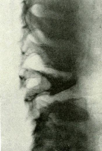 Больной К. Н., 6 лет