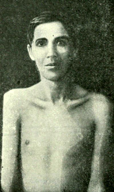 Атрофичность при туберкулезе правого плечевого сустава типа caries sicca