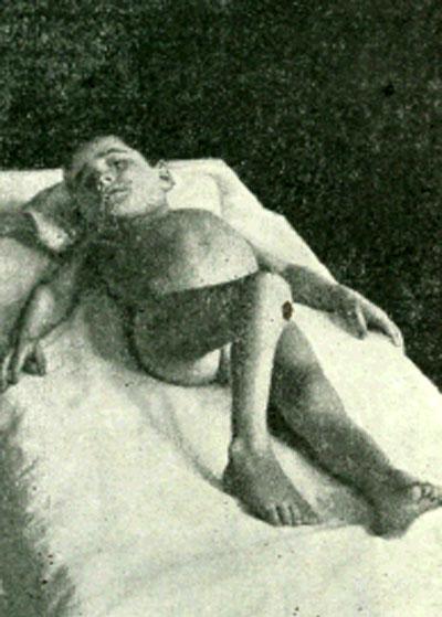 Контрактура тазобедренного сустава при туберкулезном коксите: нога согнута, приведена и ротирована внутрь
