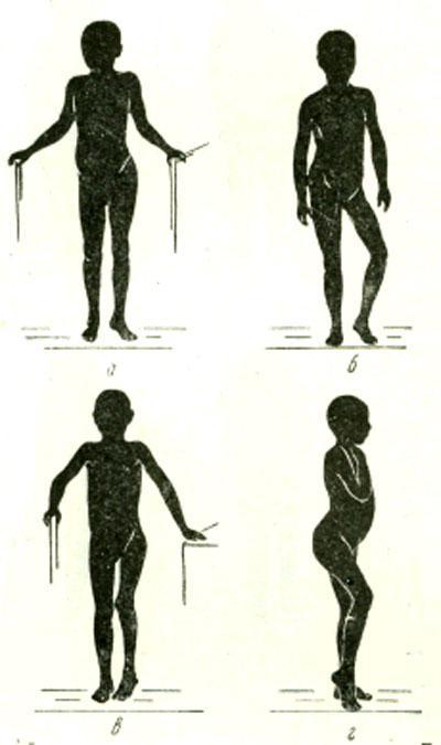 Клиника костно-суставных туберкулезов причина синовита коленного сустава