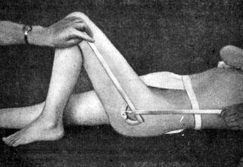 Измерения угла сгибания тазобедренного сустава