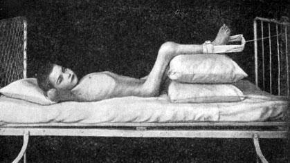 Вытяжение на подушках с манжеткой при туберкулезе коленного сустава