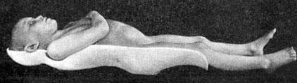 Гипсовая кроватка при поражении позвоночника