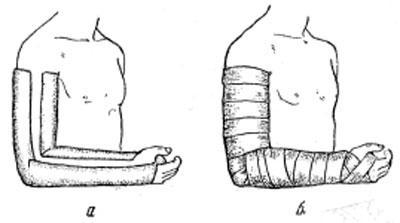 Бесподкладочная лонгетная глухая гипсовая повязка на верхнюю конечность