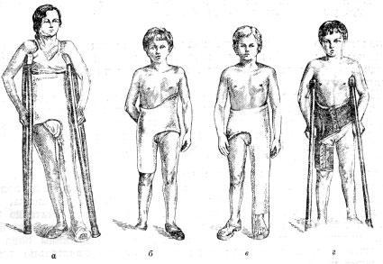 Иммобилизация и разгрузка суставов