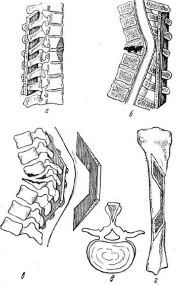 Методы остеопластической фиксации позвоночника