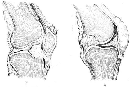 Зоворот сустава упражнения гитта шалтай-болтай для артроза тазобедренного сустава