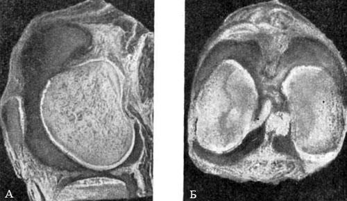 Полость коленного сустава