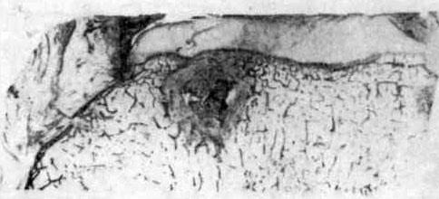 Субхондральный очаг в большеберцовой кости, отграниченный соединительнотканной оболочкой