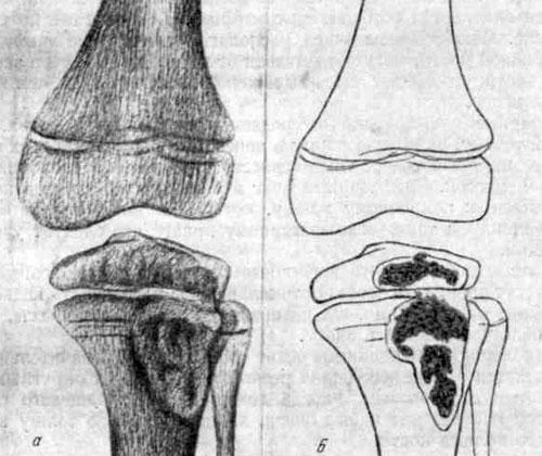 Большой эпиметафизарный очаг в наружном мыщелке большеберцовой кости