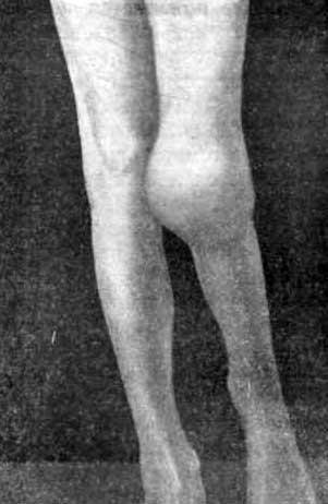 «Белая опухоль» коленного сустава